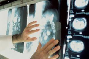 В Старом Осколе появился новый томограф